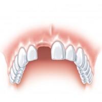 S tooth ANKYLOS a