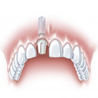 S tooth ANKYLOS b