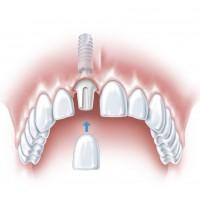 S tooth ANKYLOS c