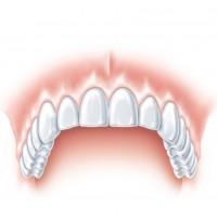 S tooth ANKYLOS d