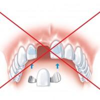 S tooth Con bm